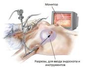 Эндоскопическое увеличение груди двухплоскостным методом