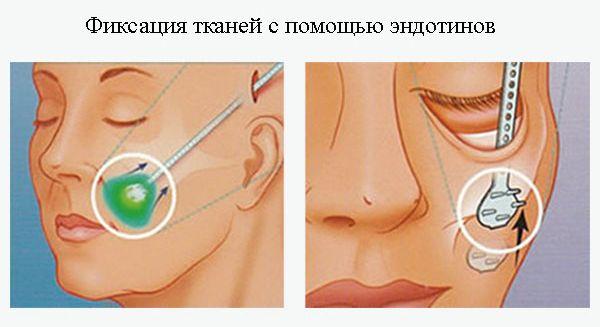 Фиксация тканей с помощью эндотинов