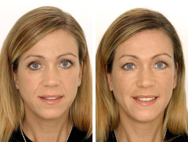 Фото пациентки до и после