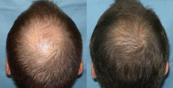 Улучшение роста волос