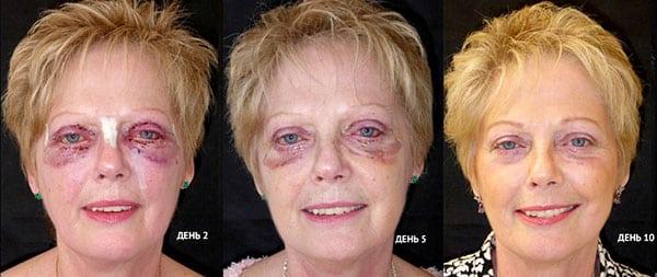 Восстановление после уколов красоты