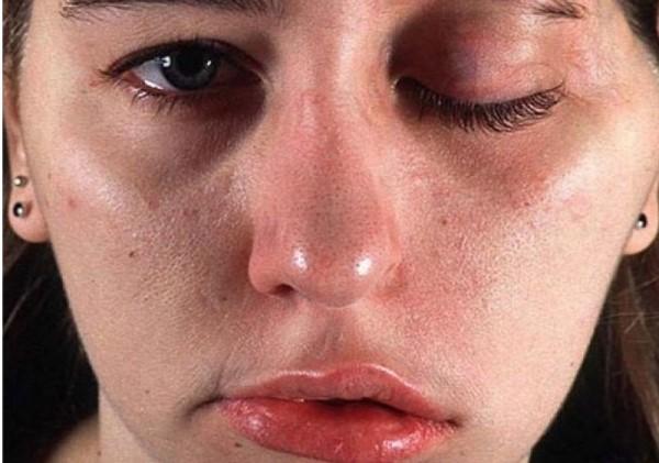Осложнения после передозировки Ботокса