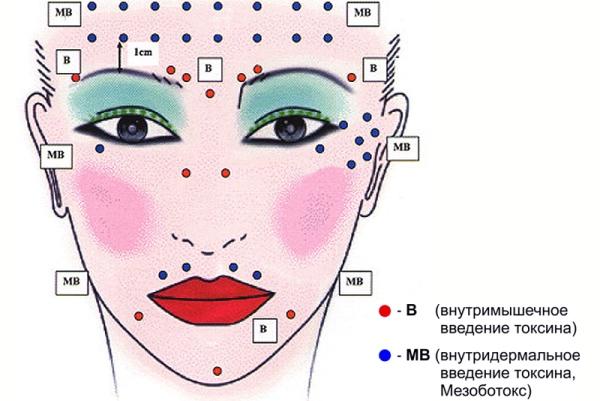 Мезоботокс под глаза