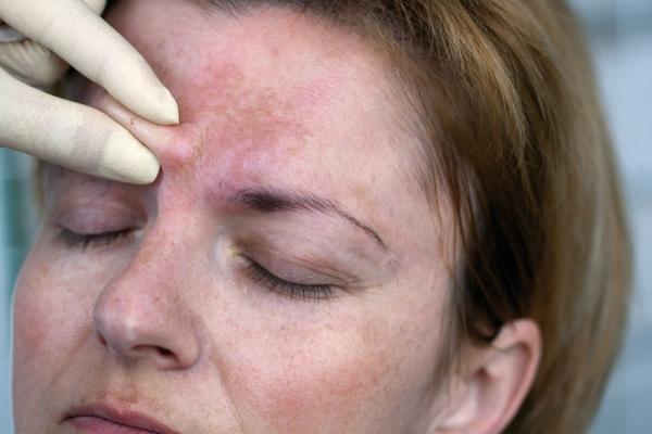 Побочные эффекты от ботокса в лоб