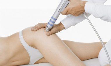 Избавление от целлюлита с помощью ударно волновой терапии
