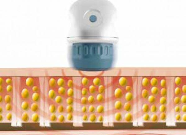 Ударно волновая терапия отзывы целлюлит