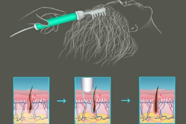 Дарсонвализация волос отзывы