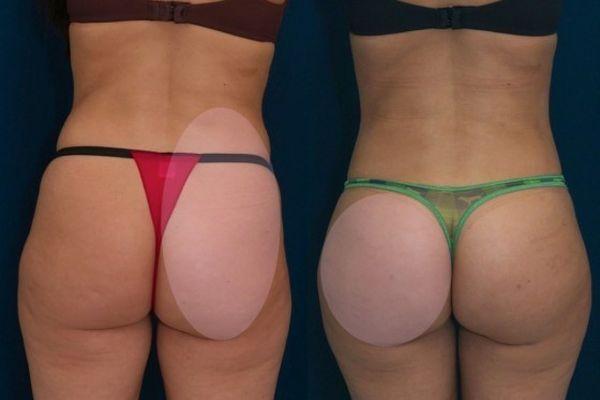 Липофилинг ягодиц фото до и после